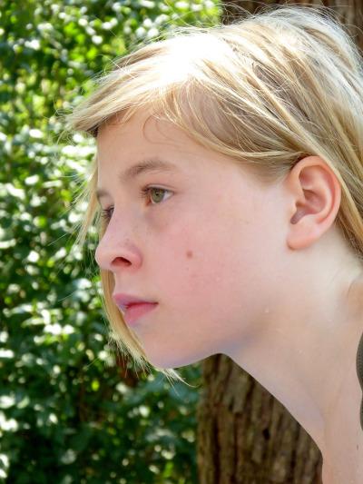 טיפולי הסרת שומות מהפנים